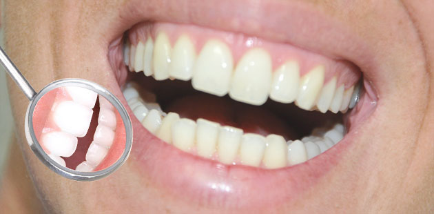 Carie dentale, cura, endodonzia, paradontologia. Dental Più