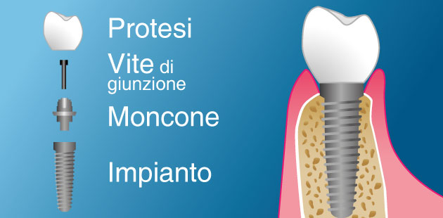 Implantologia, protesi mobile, carico immediato - Dental Più