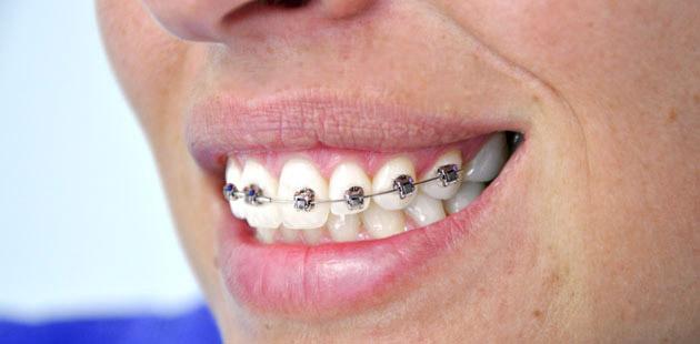 ortodonzia-dental-piu