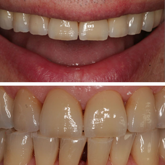 Protesi dentale. Protesi fissa e protesi mobile. Dental Più.